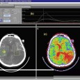 Introduction Ischaemic stroke is a very common disease that affects blood vessels in the brain causing cerebral tissue damage. Despite several studies on this subject, the early detection of acute […]