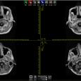 Esta solução apresenta uma alternativa às estações radiológicas convencionais para a visualizaçào e manipulação simplificada de imagens médicas que atendam o padrão DICOM. Adicionalmente, a solução possui o diferencial de […]