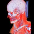 Esta solução apresenta uma alternativa eficiente e de baixo custo para a visualização tridimensional de estruturas anatômicas a partir de imagens médicas de tomografia computadorizada ou ressonância magnética. Cada tecido […]